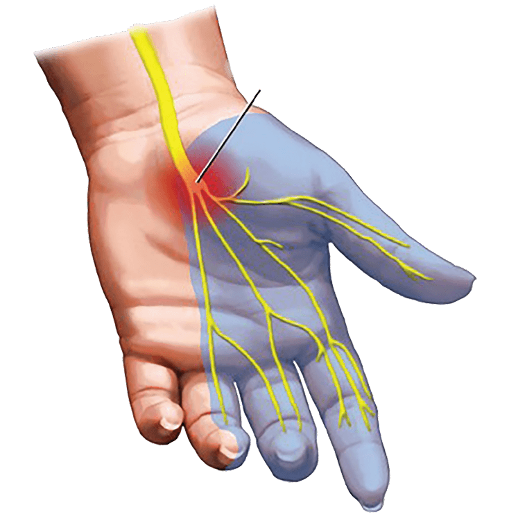 carpal-tunnel-2.psd@2x-8.png