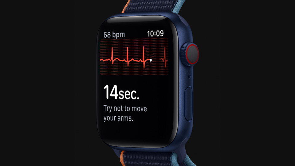 Apple Watch Series 6 is capable of generating an ECG similar to a single lead electrocardiogram.
